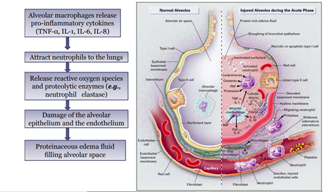 Acute Respiratory Distress Syndrome- Definition & Pathophysiology