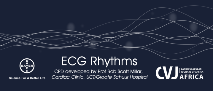Earn CPD points and ECG Rhythms´knowledge